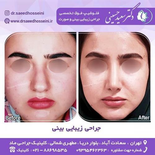 جراحی-زیبایی-بینی-30