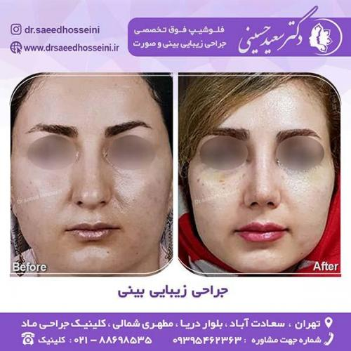 جراحی-زیبایی-بینی-40