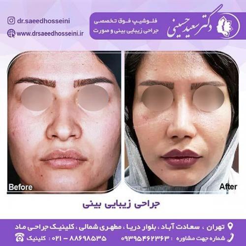 جراحی-زیبایی-بینی-44