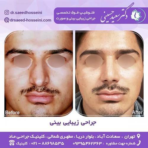 جراحی-زیبایی-بینی-6