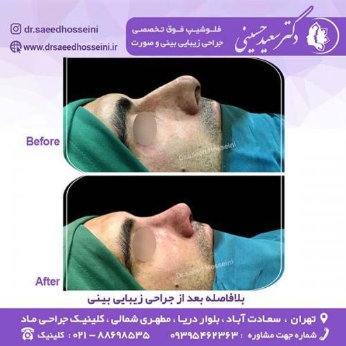 جراحی-زیبایی-بینی-133