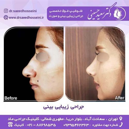 جراحی-زیبایی-بینی-60
