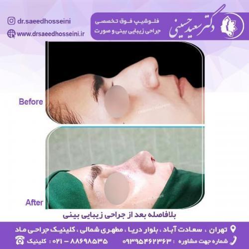 جراحی-زیبایی-بینی-73