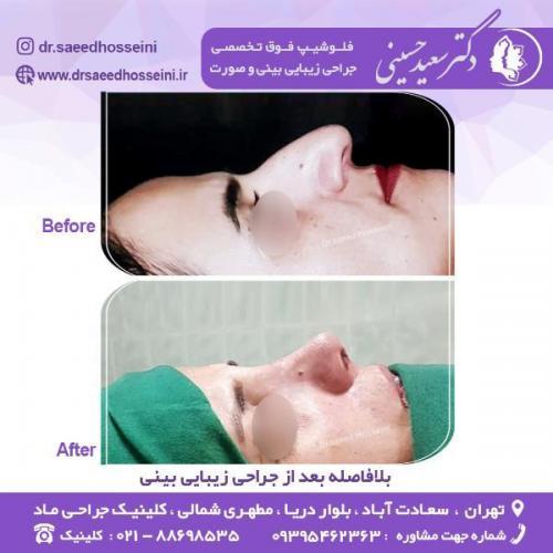 جراحی-زیبایی-بینی-75