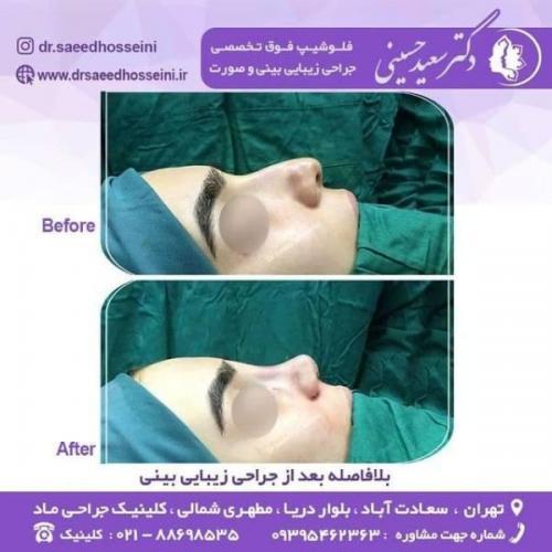 جراحی زیبایی بینی 150 (13)